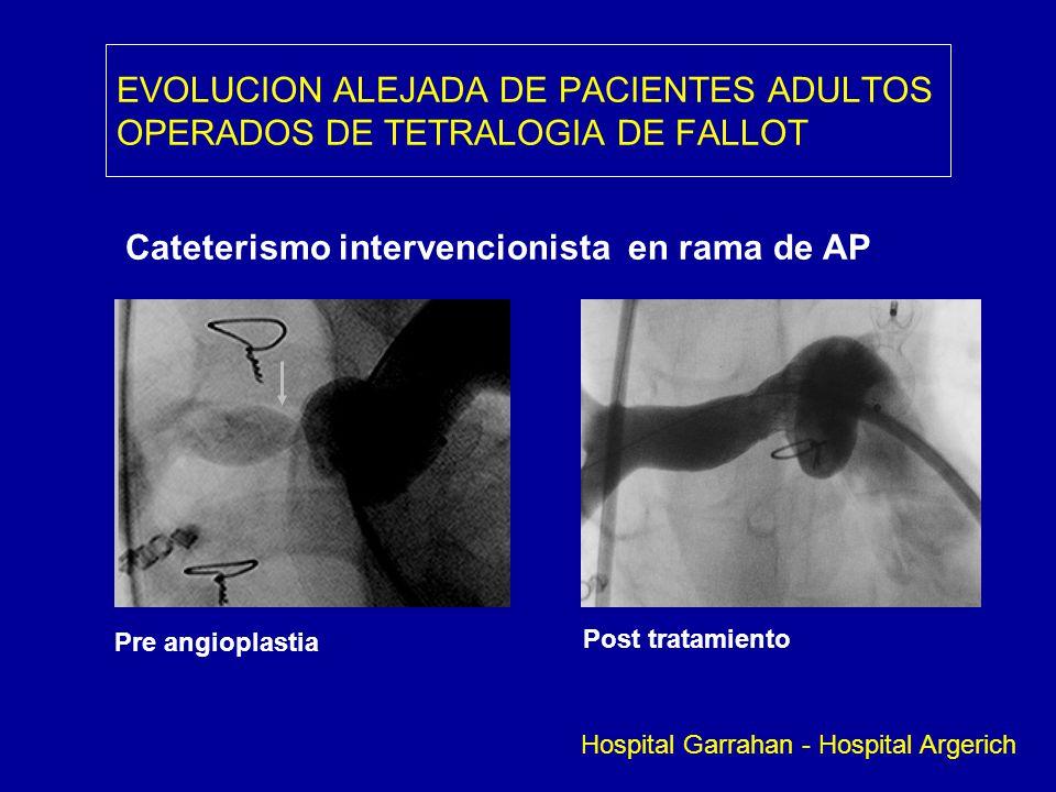 EVOLUCION ALEJADA DE PACIENTES ADULTOS OPERADOS DE TETRALOGIA DE FALLOT Cateterismo intervencionista en rama de AP Pre angioplastia Post tratamiento H
