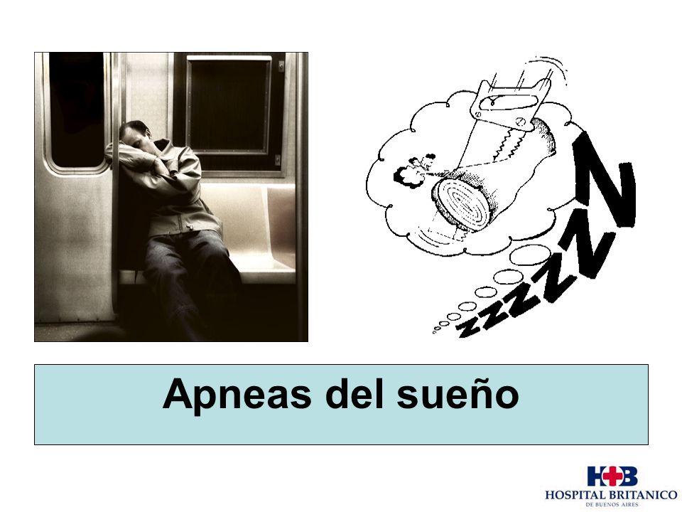 Apneas del sueño