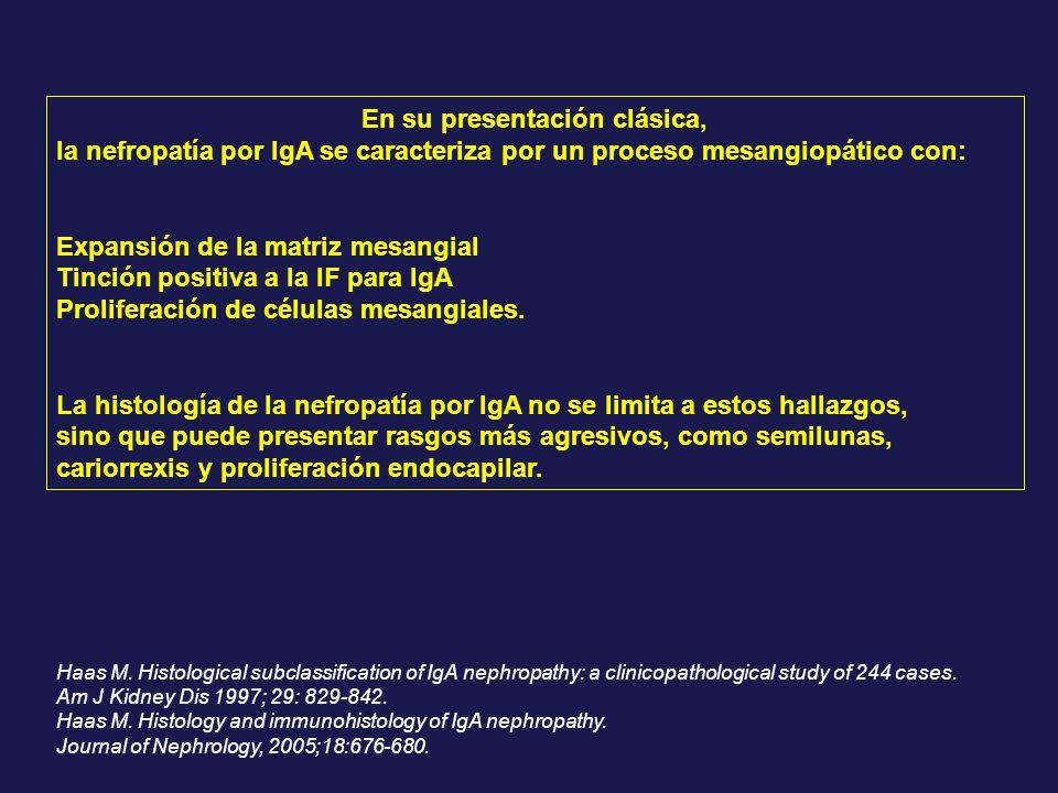 En su presentación clásica, la nefropatía por IgA se caracteriza por un proceso mesangiopático con: Expansión de la matriz mesangial Tinción positiva