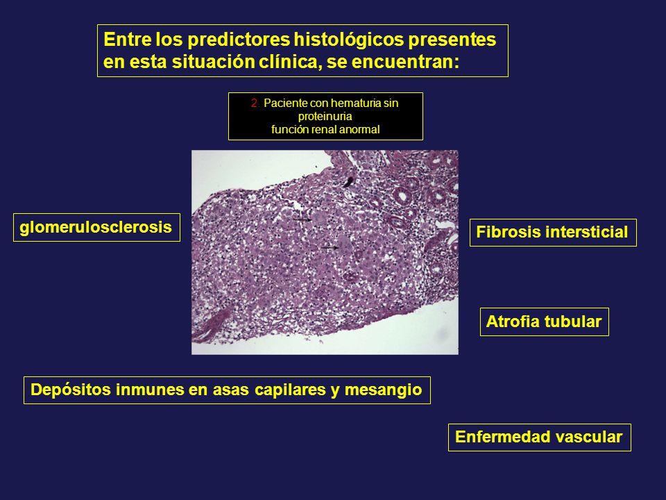 Entre los predictores histológicos presentes en esta situación clínica, se encuentran: glomerulosclerosis Atrofia tubular Fibrosis intersticial Depósi