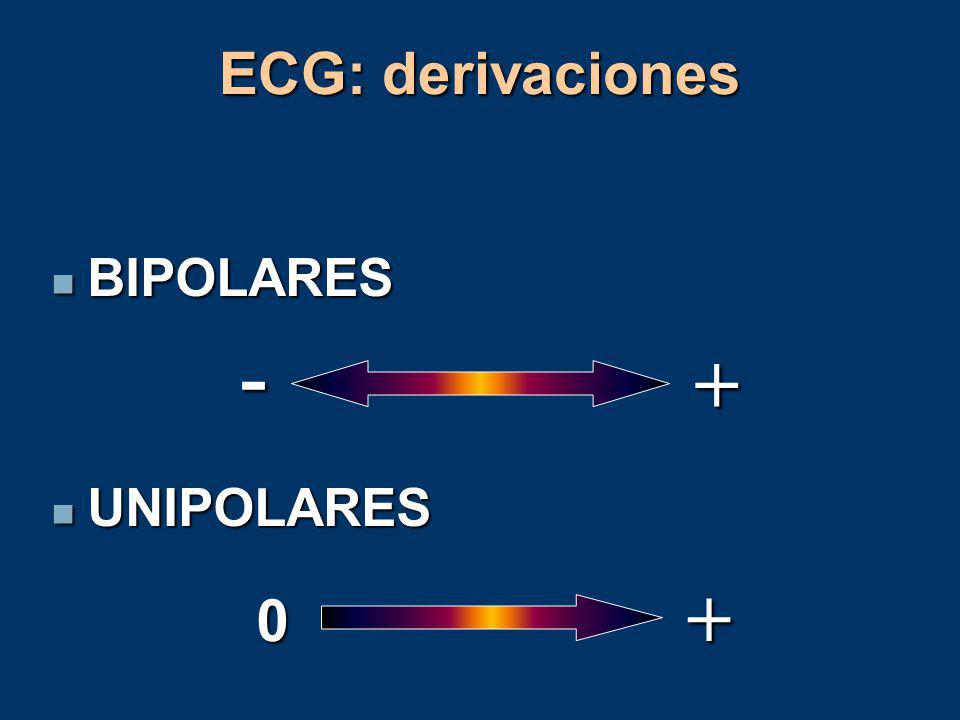 Relación Sistema de conducción-ECG