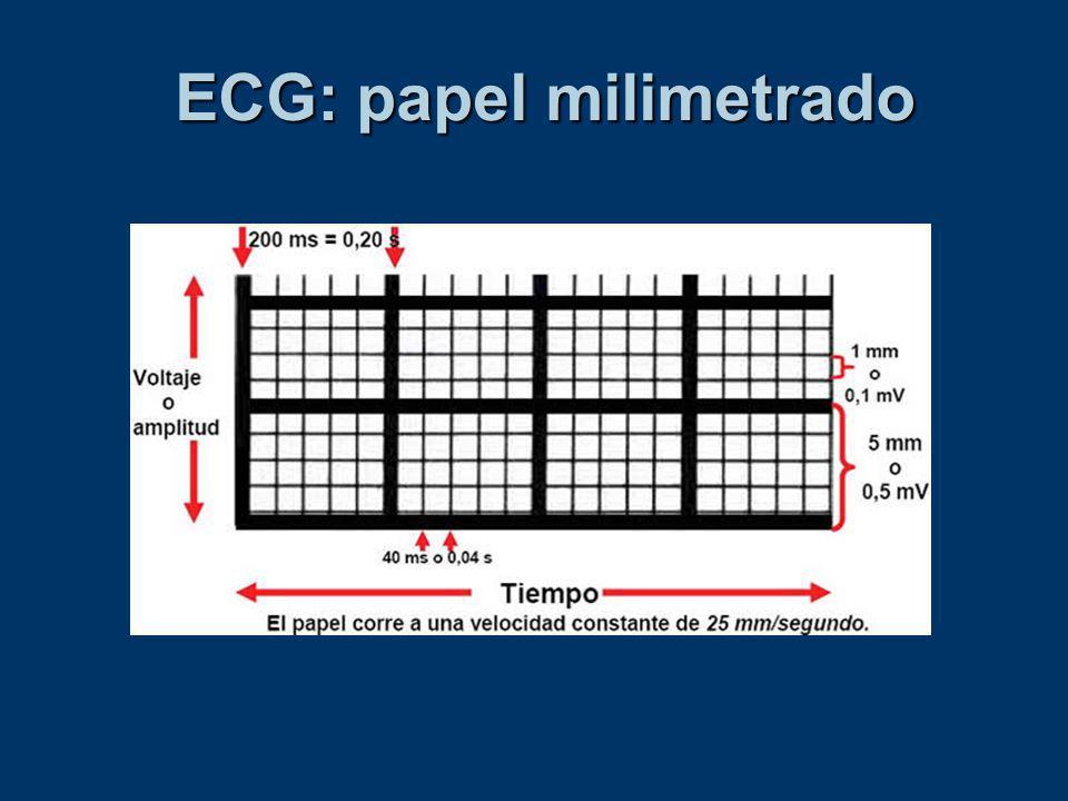 Interferencia 60 Hz
