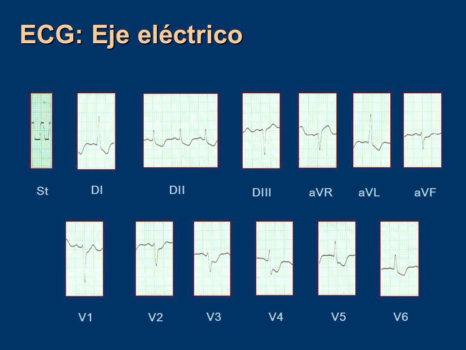 ECG: Eje eléctrico