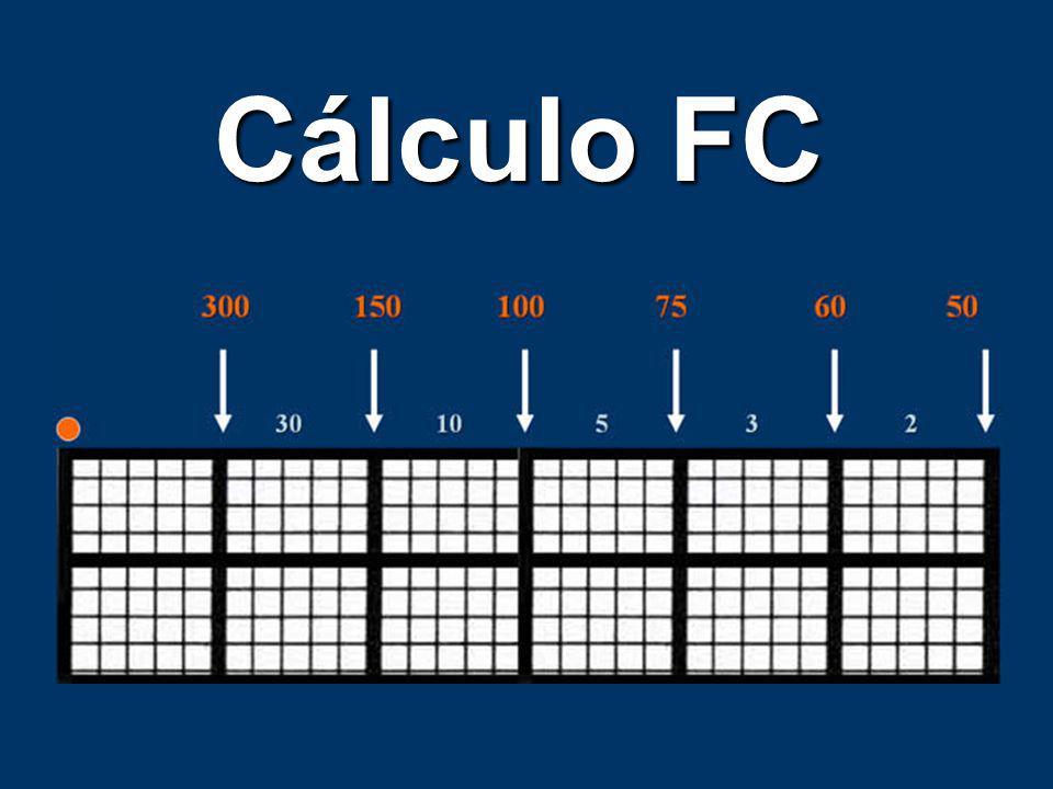 Cómo calcular FC? Ritmos regulares Ritmos regulares Ritmos irregulares Ritmos irregulares Escala descendente Escala descendente División (1500) Divisi