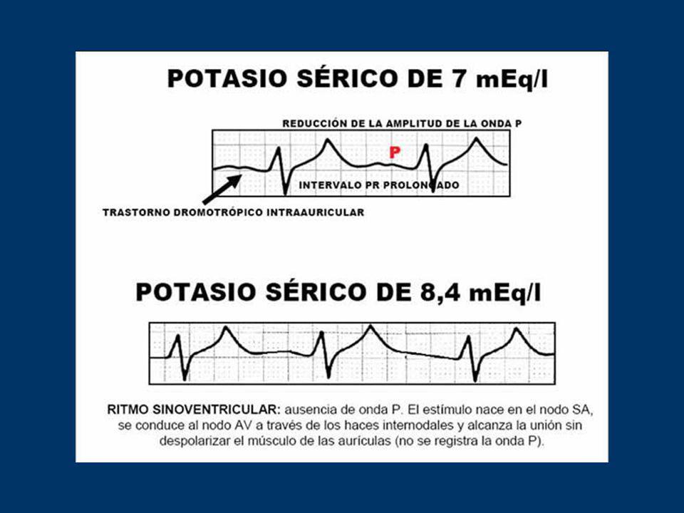 Hiperkalemia: 1) Onda T estrecha y picuda - QT corto 2) Ensanchamiento del QRS 2) Ensanchamiento del QRS 3) Disminución de onda P 3) Disminución de on