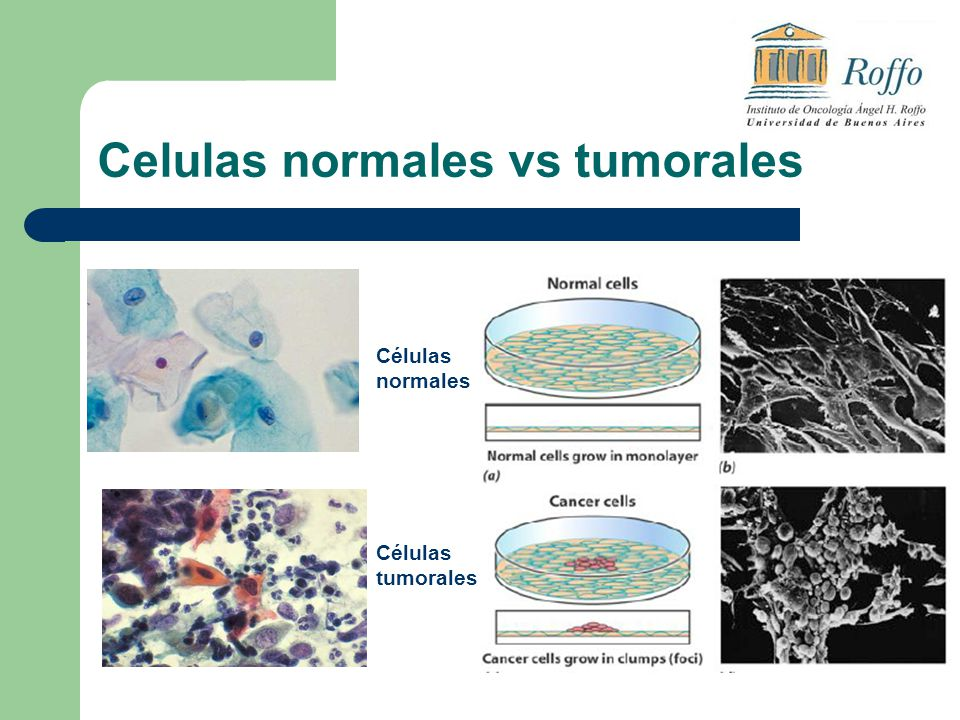 Celulas normales vs tumorales Células normales Células tumorales