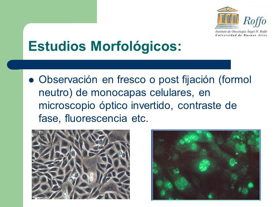 Estudios Morfológicos: Observación en fresco o post fijación (formol neutro) de monocapas celulares, en microscopio óptico invertido, contraste de fase, fluorescencia etc.