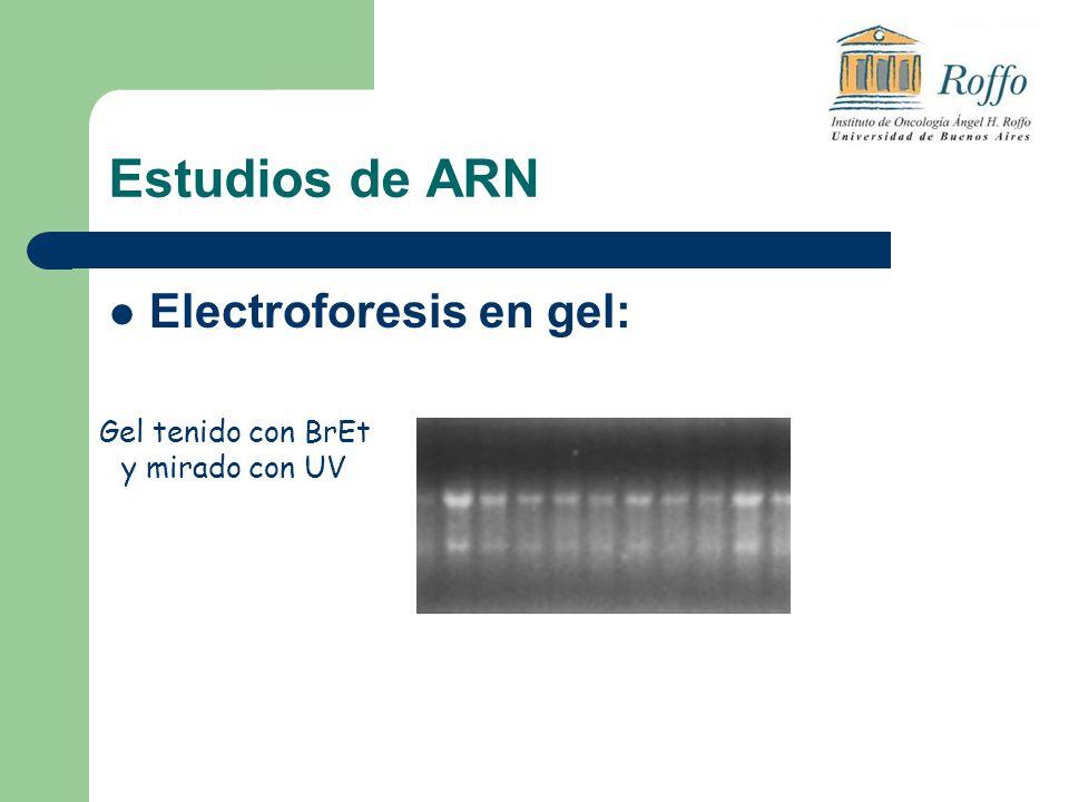 Estudios de ARN Electroforesis en gel: Gel tenido con BrEt y mirado con UV