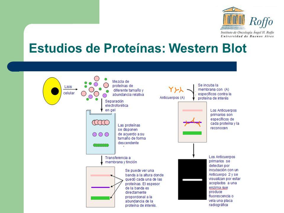 Estudios de Proteínas: Western Blot