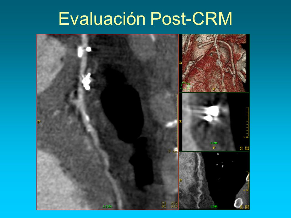 Evaluación Post-CRM