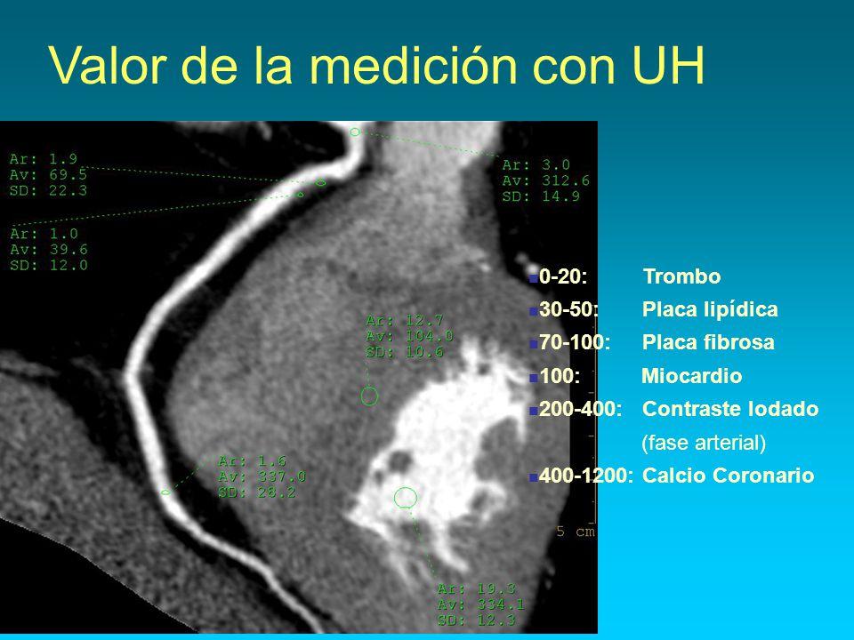Valor de la medición con UH 0-20: Trombo 30-50: Placa lipídica 70-100: Placa fibrosa 100: Miocardio 200-400: Contraste Iodado (fase arterial) 400-1200: Calcio Coronario