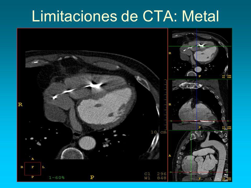Limitaciones de CTA: Metal