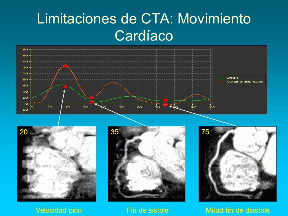 Limitaciones de CTA: Movimiento Cardíaco Velocidad picoFin de sistoleMitad-fin de diastole 203575
