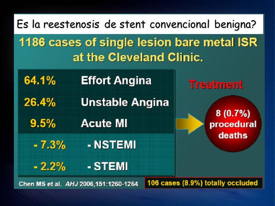 Es la reestenosis de stent convencional benigna?