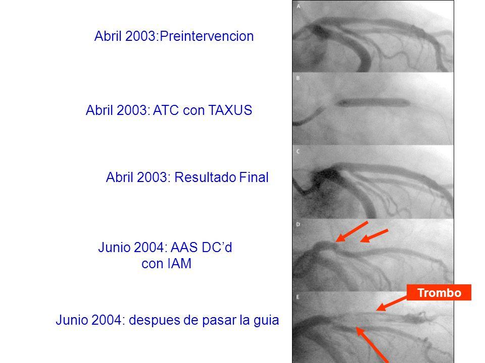 G.Guagliumi et al, Circulation 2003; 107:1340 Stent conv.