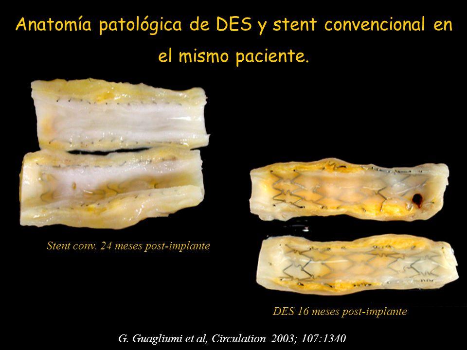 G. Guagliumi et al, Circulation 2003; 107:1340 Stent conv. 24 meses post-implante DES 16 meses post-implante Anatomía patológica de DES y stent conven