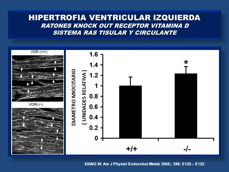 XIANG W. Am J Physiol Endocrinol Metab 2005;: 288: E125 – E132. DIAMETRO MIOCITARIO ( UNIDADES RELATIVA )
