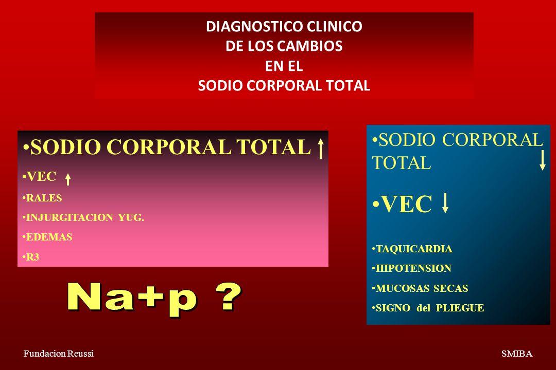 Fundacion ReussiSMIBA DIAGNOSTICO CLINICO DE LOS CAMBIOS EN EL SODIO CORPORAL TOTAL SODIO CORPORAL TOTAL VEC RALES INJURGITACION YUG.