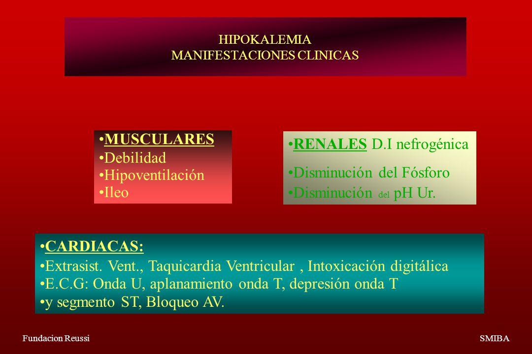 Fundacion ReussiSMIBA HIPOKALEMIA MANIFESTACIONES CLINICAS MUSCULARES Debilidad Hipoventilación Ileo RENALES D.I nefrogénica Disminución del Fósforo Disminución del pH Ur.
