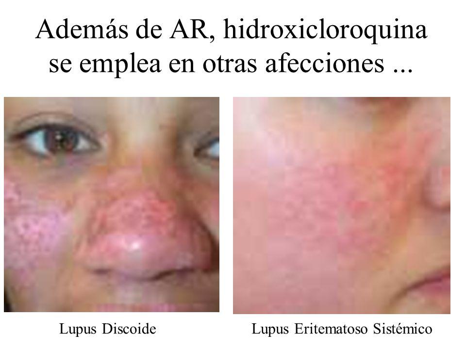 Además de AR, hidroxicloroquina se emplea en otras afecciones... Lupus DiscoideLupus Eritematoso Sistémico