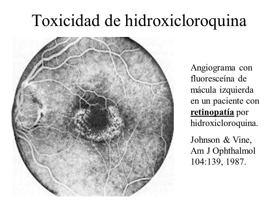 Toxicidad de hidroxicloroquina Angiograma con fluoresceína de mácula izquierda en un paciente con retinopatía por hidroxicloroquina. Johnson & Vine, A