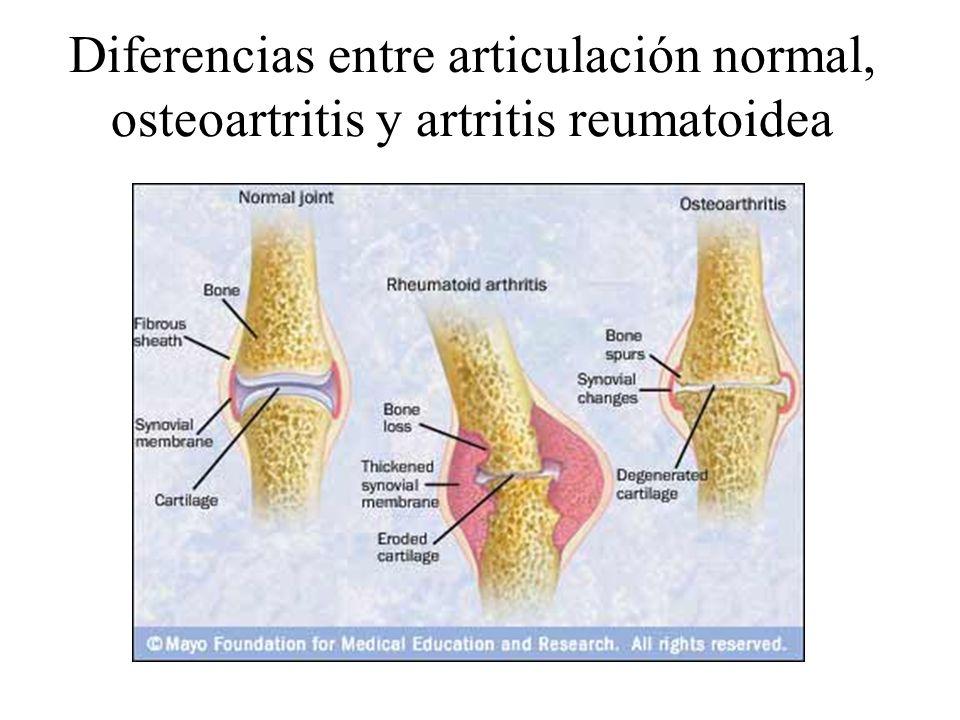 Diferencias entre articulación normal, osteoartritis y artritis reumatoidea