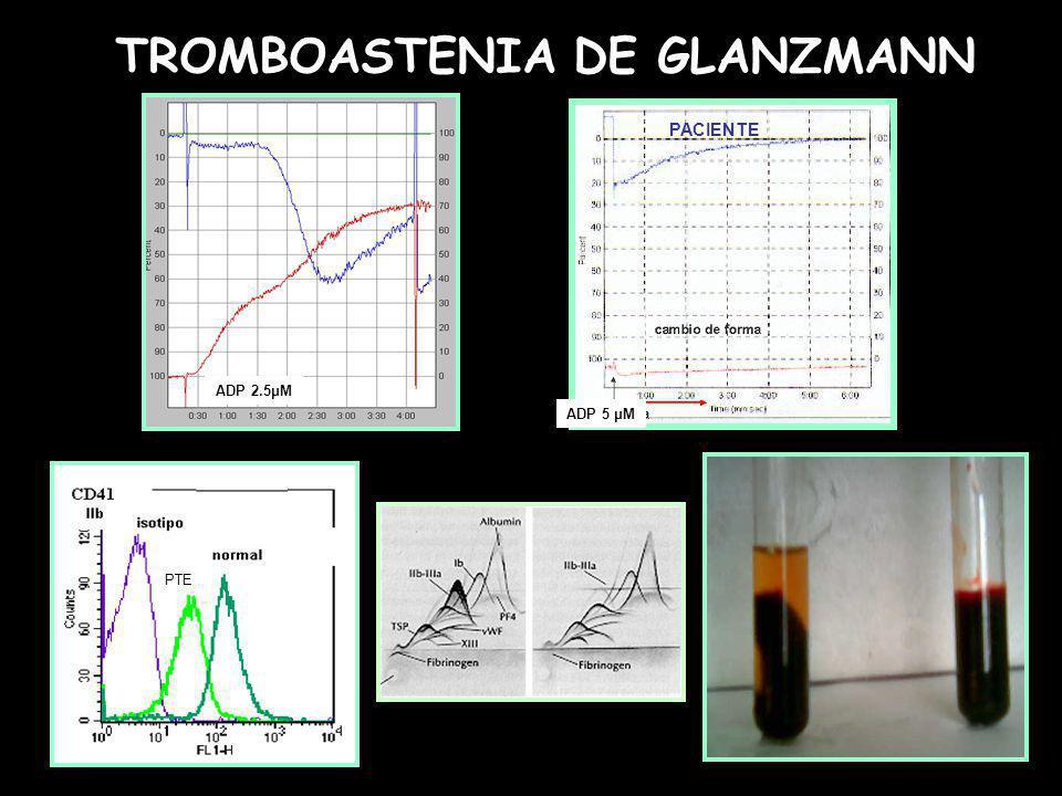 NORMAL ADP 2.5μM ADP 5 μM PACIENTE TROMBOASTENIA DE GLANZMANN PTE