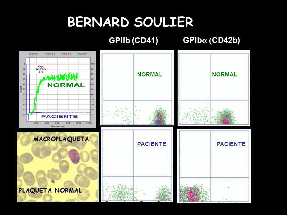 GPIIb (CD41) GPIb CD42b) NORMAL PACIENTE BERNARD SOULIER