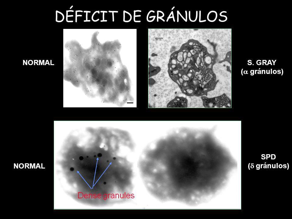 DÉFICIT DE GRÁNULOS NORMALS. GRAY ( gránulos) NORMAL SPD ( gránulos)
