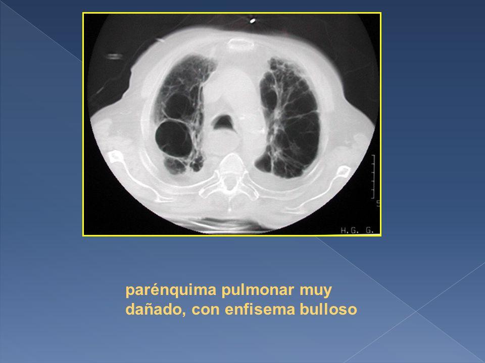 parénquima pulmonar muy dañado, con enfisema bulloso