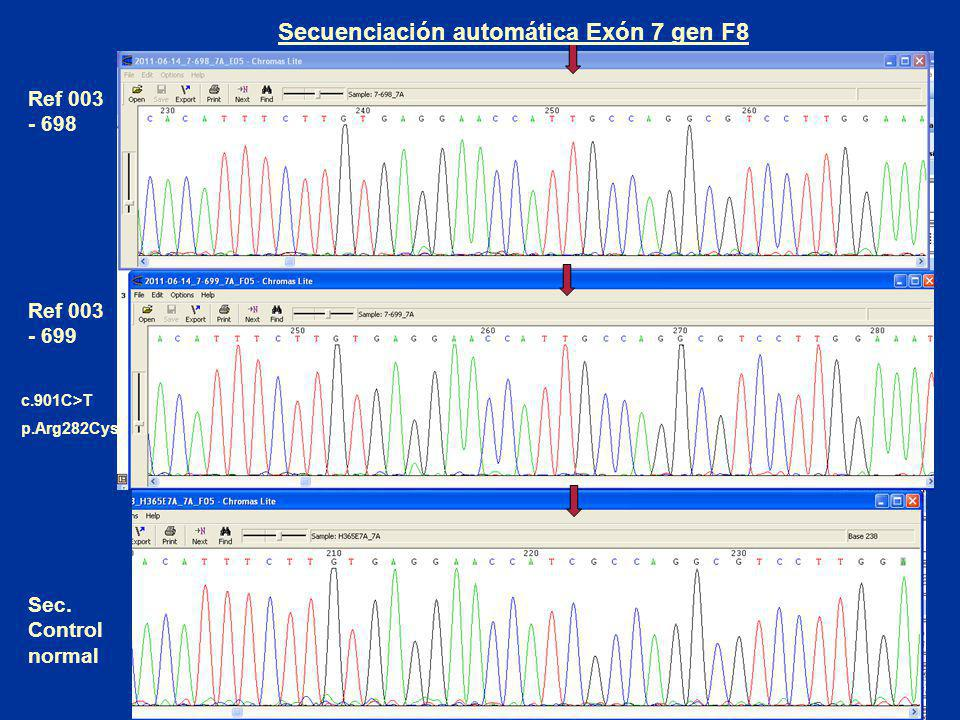 Ref 003 - 698 Ref 003 - 699 Sec. Control normal Secuenciación automática Exón 7 gen F8 c.901C>T p.Arg282Cys