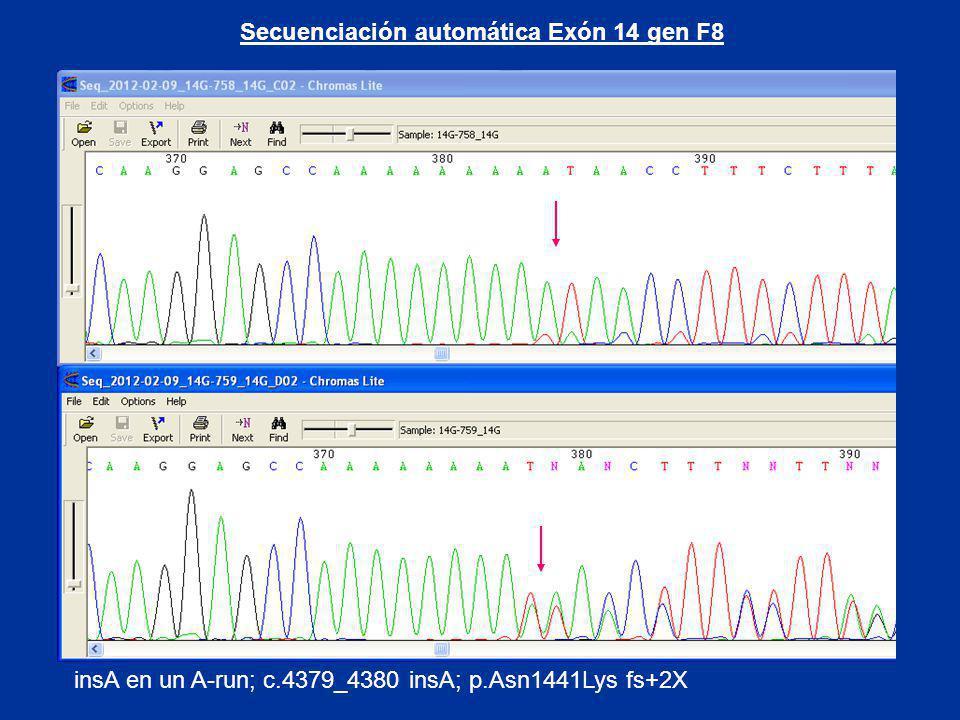 insA en un A-run; c.4379_4380 insA; p.Asn1441Lys fs+2X Secuenciación automática Exón 14 gen F8