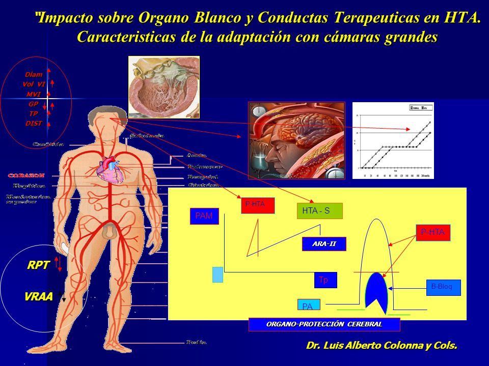 CONDUCTAS TERAPEUTICAS EN HTA GRUPO CON CAMARAS GRANDES, VOLUMENES ALTOS CON CARGAS VENTRICULARES NO COMPENSADAS E Imp.Ao.+ RPT PSEUDO-NORMALES y C-PP