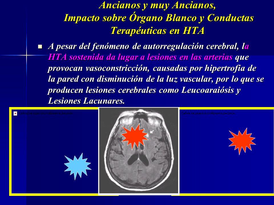 Curva de Flujo / TAM Cerebral Curva de Flujo / TAM Cerebral Ancianos y muy Ancianos, Impacto sobre Órgano Blanco y Conductas Terapéuticas en HTA Flujo