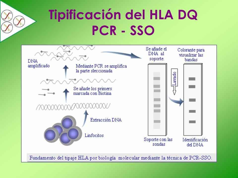Tipificación del HLA DQ PCR - SSO