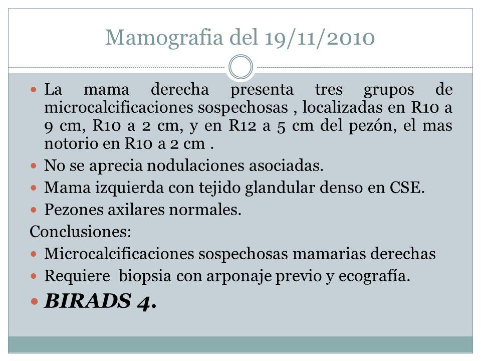Mamografia del 19/11/2010 La mama derecha presenta tres grupos de microcalcificaciones sospechosas, localizadas en R10 a 9 cm, R10 a 2 cm, y en R12 a