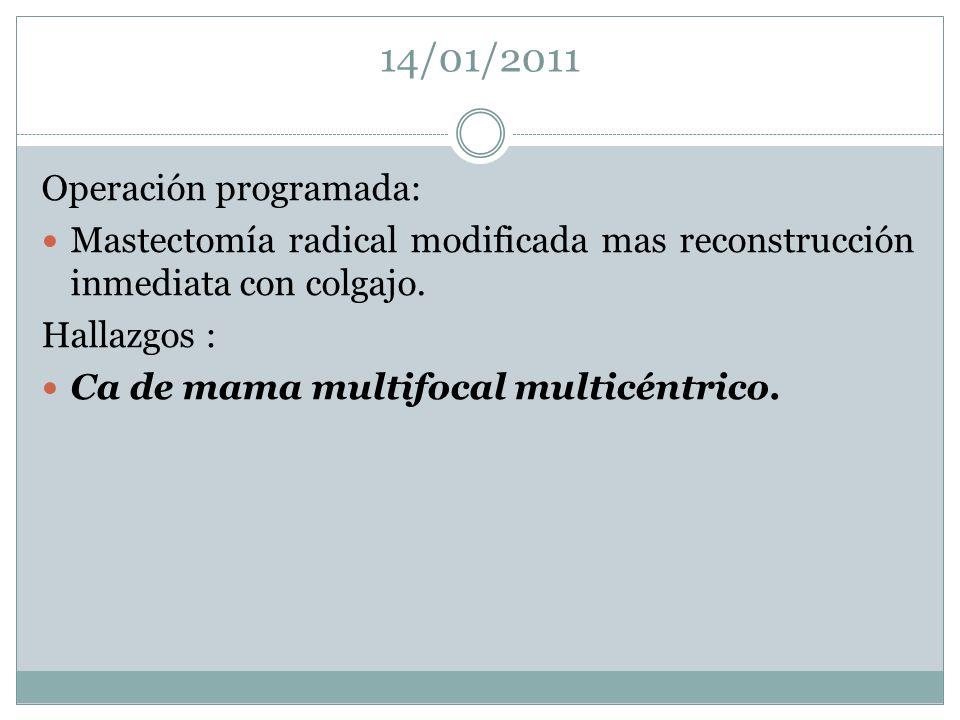 14/01/2011 Operación programada: Mastectomía radical modificada mas reconstrucción inmediata con colgajo. Hallazgos : Ca de mama multifocal multicéntr
