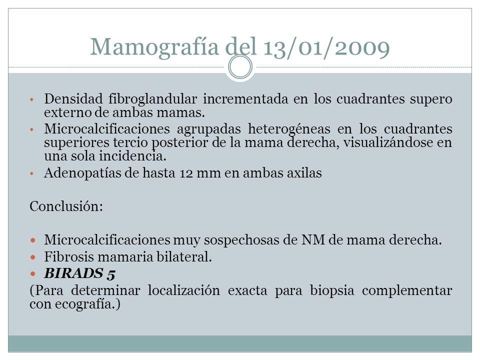 Mamografía del 13/01/2009 Densidad fibroglandular incrementada en los cuadrantes supero externo de ambas mamas. Microcalcificaciones agrupadas heterog