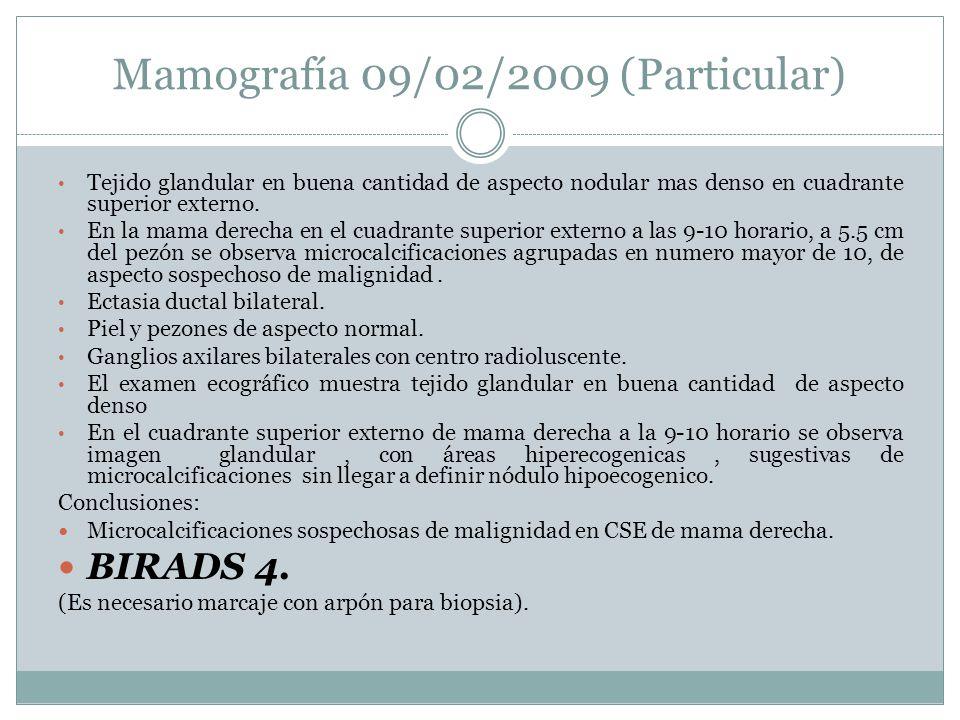 Mamografía 09/02/2009 (Particular) Tejido glandular en buena cantidad de aspecto nodular mas denso en cuadrante superior externo. En la mama derecha e