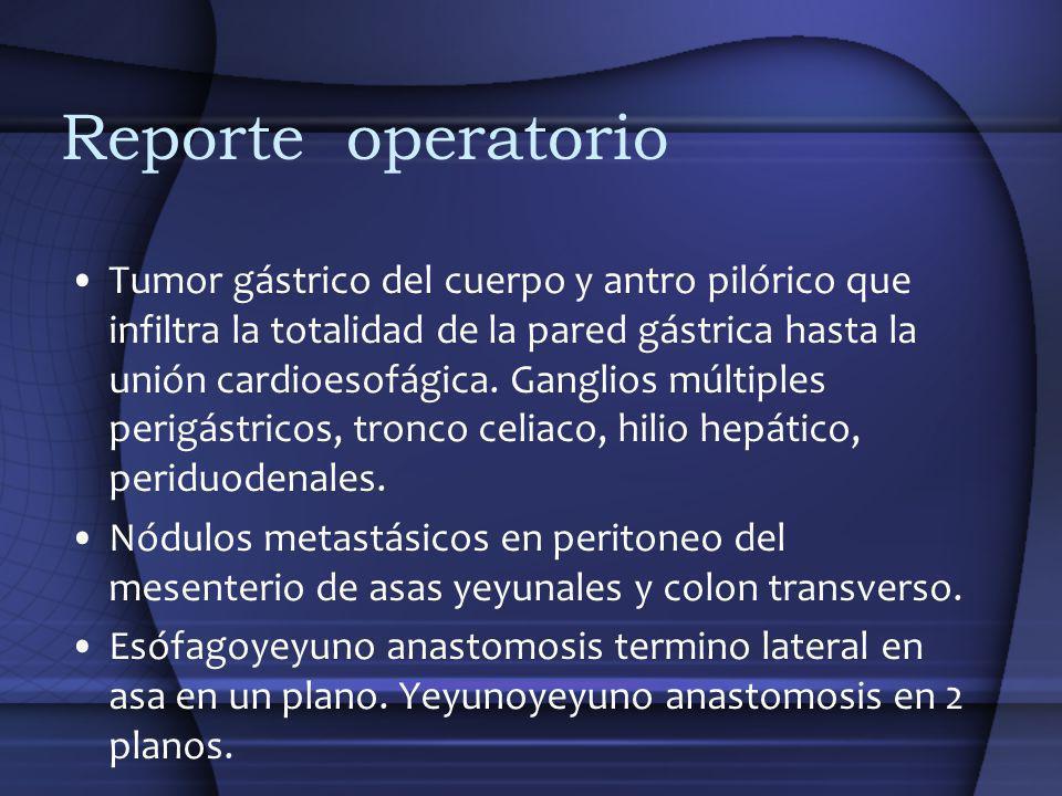 Reporte operatorio Tumor gástrico del cuerpo y antro pilórico que infiltra la totalidad de la pared gástrica hasta la unión cardioesofágica. Ganglios