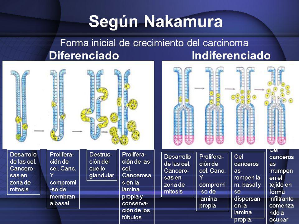 Desarrollo de las cel. Cancero- sas en zona de mitosis Prolifera- ción de cel. Canc. Y compromi -so de membran a basal Destruc- ción del cuello glandu