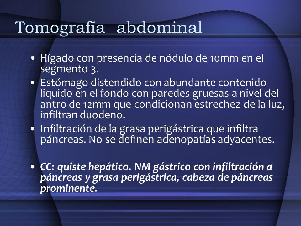 Tomografía abdominal Hígado con presencia de nódulo de 10mm en el segmento 3. Estómago distendido con abundante contenido liquido en el fondo con pare