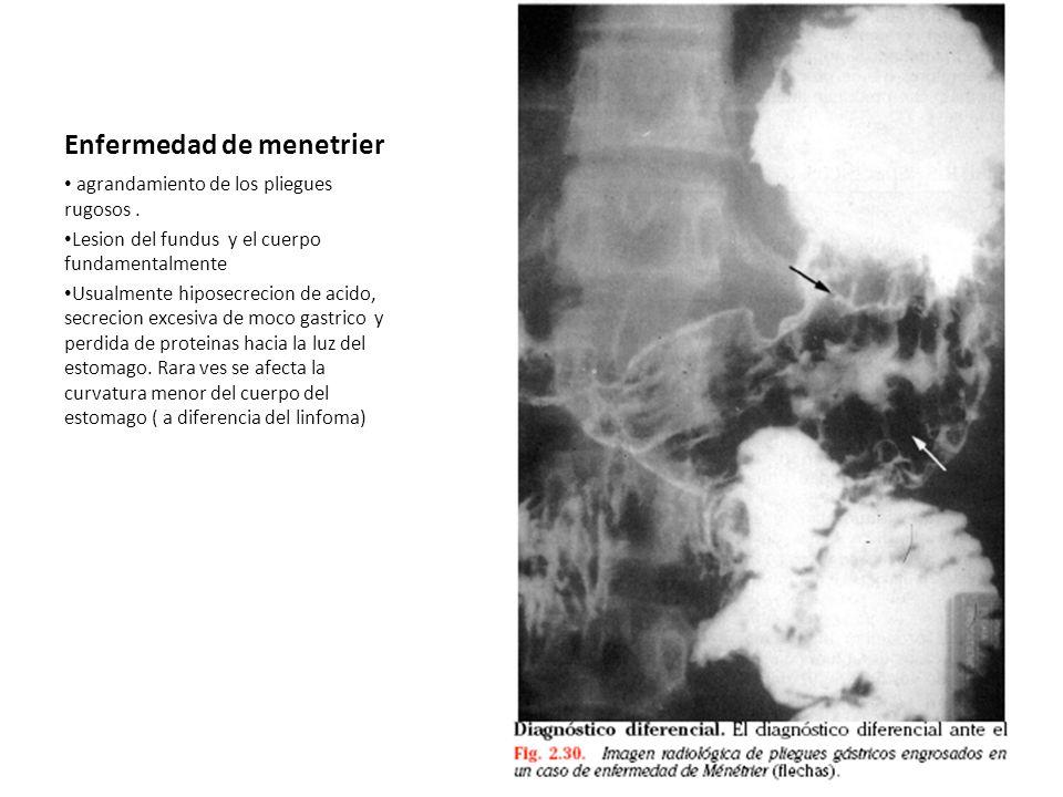Enfermedad de menetrier agrandamiento de los pliegues rugosos.