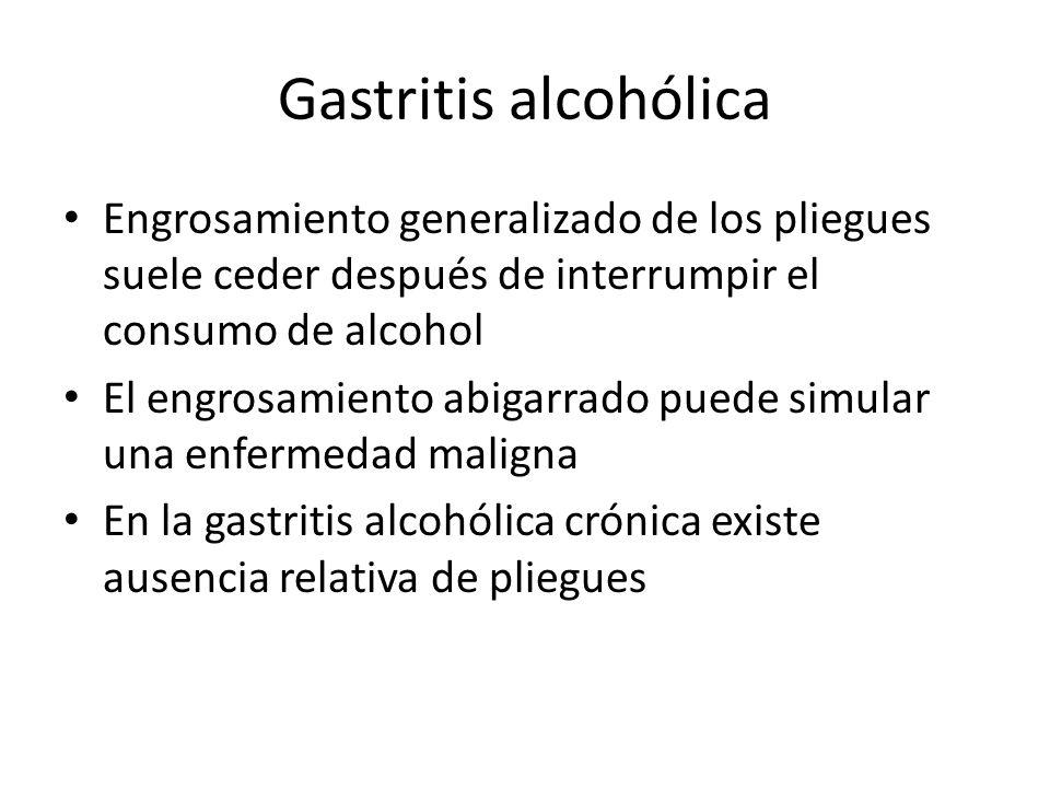 Gastritis alcohólica Engrosamiento generalizado de los pliegues suele ceder después de interrumpir el consumo de alcohol El engrosamiento abigarrado puede simular una enfermedad maligna En la gastritis alcohólica crónica existe ausencia relativa de pliegues