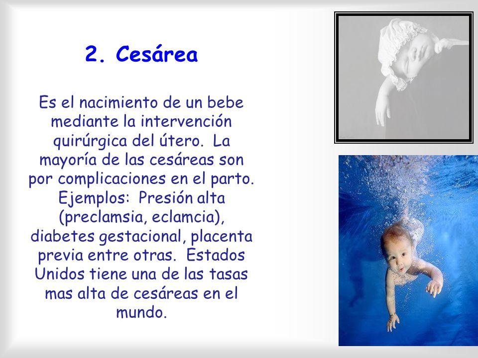 Proceso del Nacimiento Trabajo de parto- proceso de cam bios uterinos, cervicales y otras que por lo regular duran alrededor de dos semanas, procediendo al nacimiento.