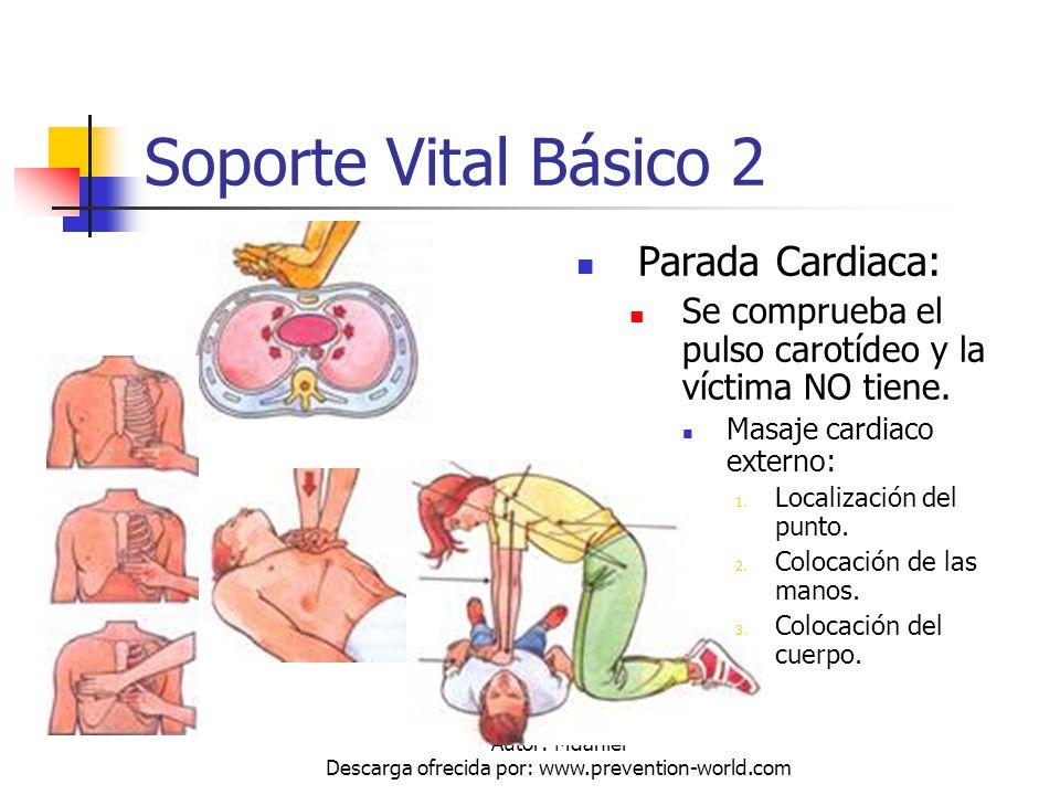 Autor: Mdaniel Descarga ofrecida por: www.prevention-world.com Soporte Vital Básico 2 Parada Cardiaca: Se comprueba el pulso carotídeo y la víctima NO