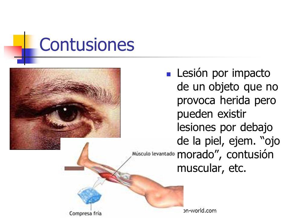 Autor: Mdaniel Descarga ofrecida por: www.prevention-world.com Contusiones Lesión por impacto de un objeto que no provoca herida pero pueden existir l