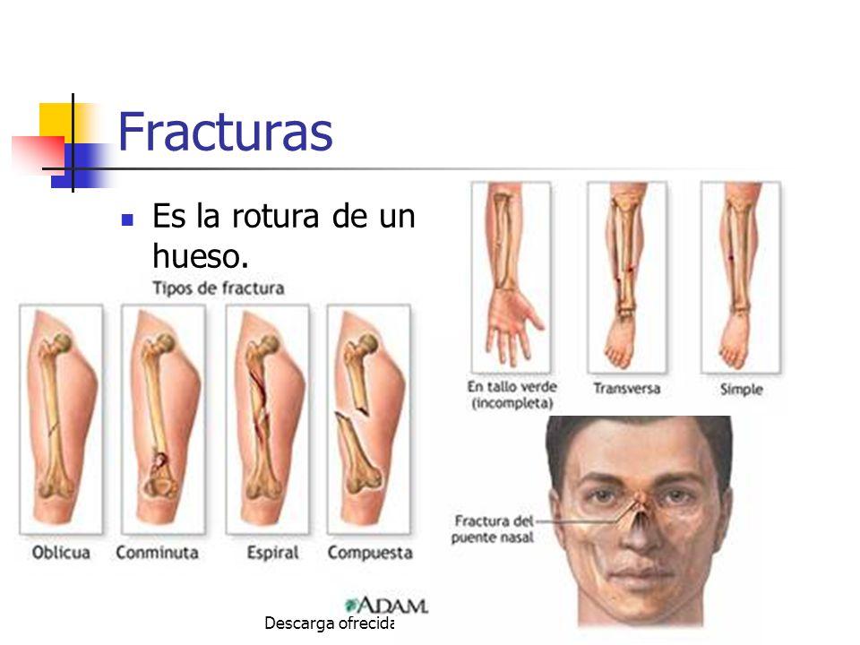 Autor: Mdaniel Descarga ofrecida por: www.prevention-world.com Fracturas Es la rotura de un hueso.