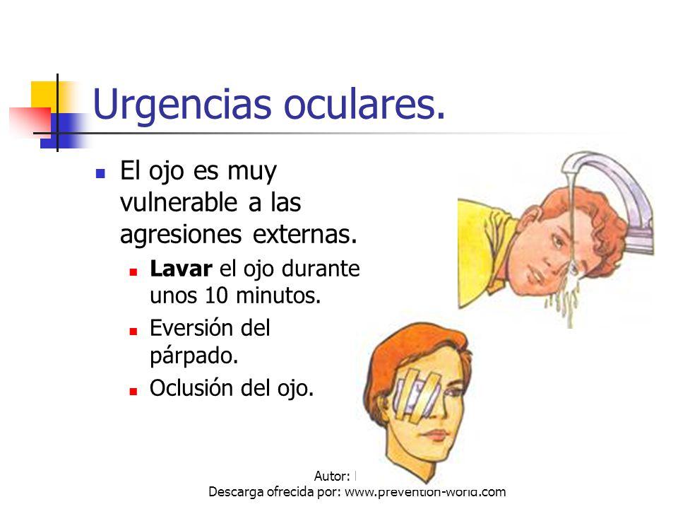 Autor: Mdaniel Descarga ofrecida por: www.prevention-world.com Urgencias oculares. El ojo es muy vulnerable a las agresiones externas. Lavar el ojo du