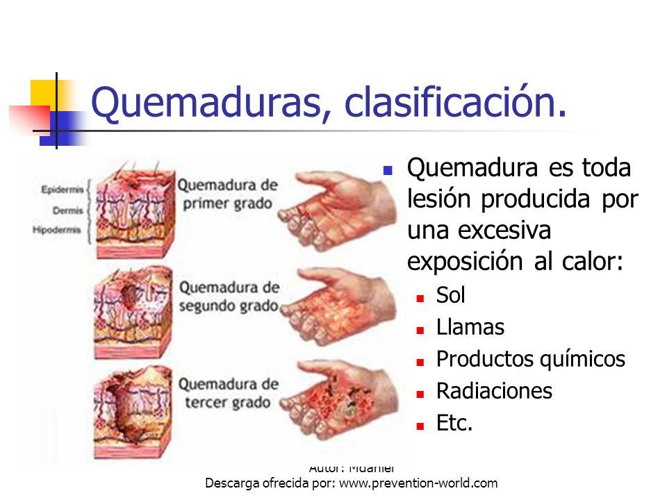 Autor: Mdaniel Descarga ofrecida por: www.prevention-world.com Quemaduras, clasificación. Quemadura es toda lesión producida por una excesiva exposici